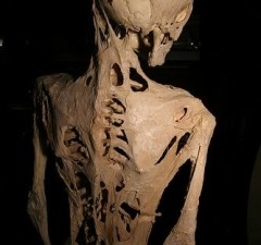 Fibrodysplasia Ossificans Progressiva rarest diseases in the world