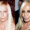 Donatella Versace Plastic Surgeries